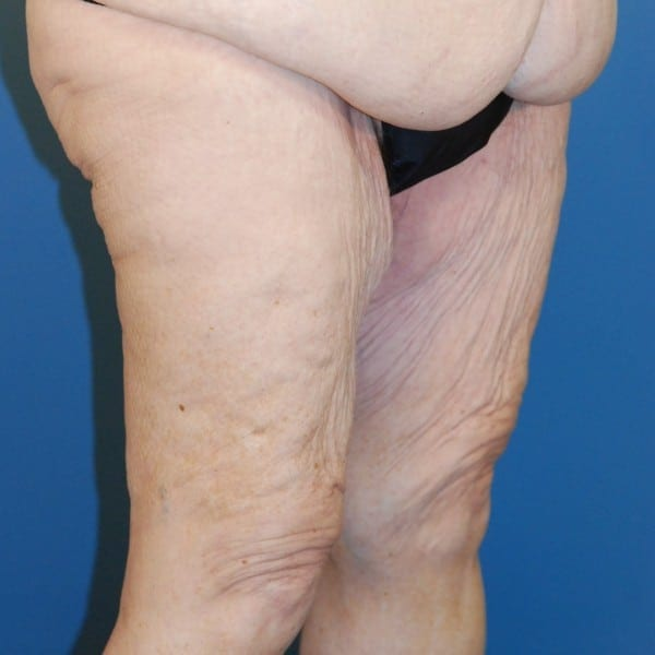 Thigh Lift Patient 02 Before - 2