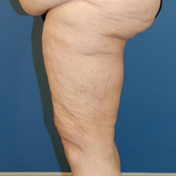 Thigh Lift Patient 02 Before - 3
