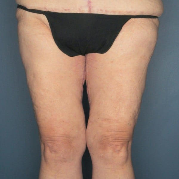 Thigh Lift Patient 02 After