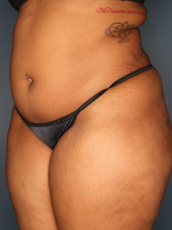 Liposuction Patient 06 Before - 3
