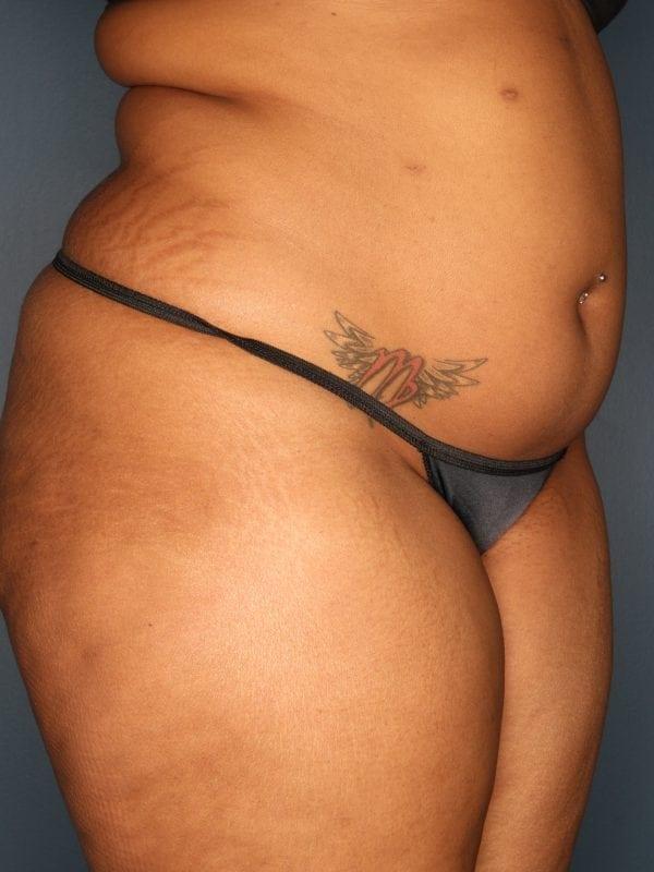 Liposuction Patient 06 Before - 2