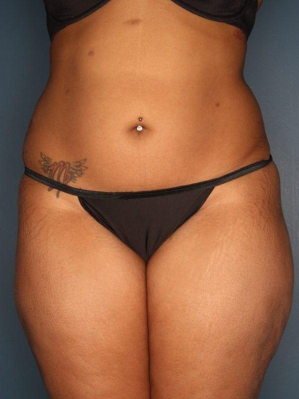 Liposuction Patient 06 After