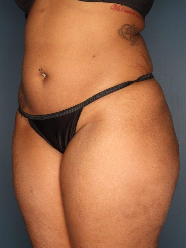 Liposuction Patient 06 After - 3