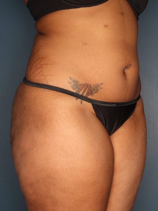 Liposuction Patient 06 After - 2