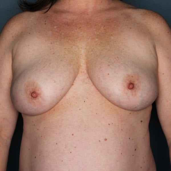 Implant-Based Reconstruction Patient 22 Before - 1
