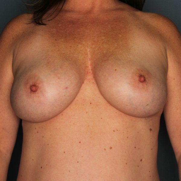 Implant-Based Reconstruction Patient 22 After - 1