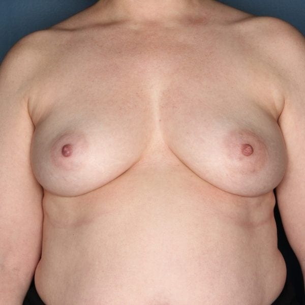 Implant-Based Reconstruction Patient 23 Before - 1