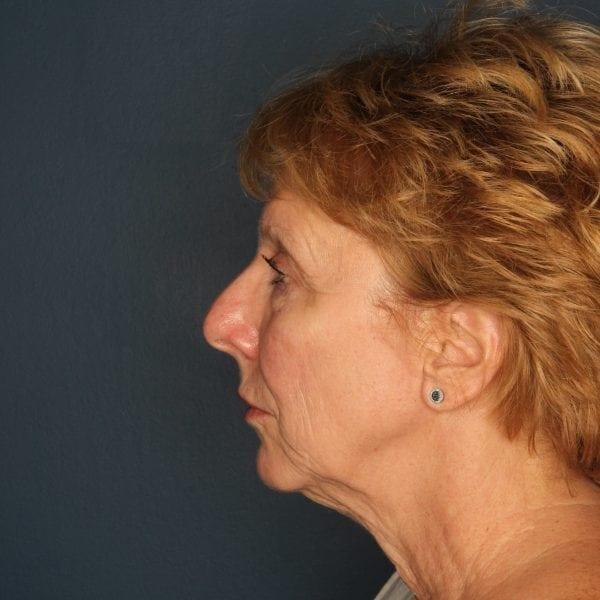 Facelift Patient 04 Before - 2