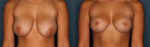 Al Cohn Breast Reduction Patient 3 months post surgery