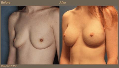 Dr. Cohn - B_A Breast Aug