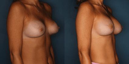 Dr Cohn Breast Aug Revision Patient