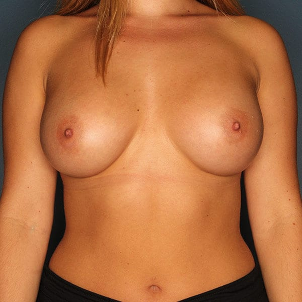 Breast Augmentation Patient 4519 After - 1