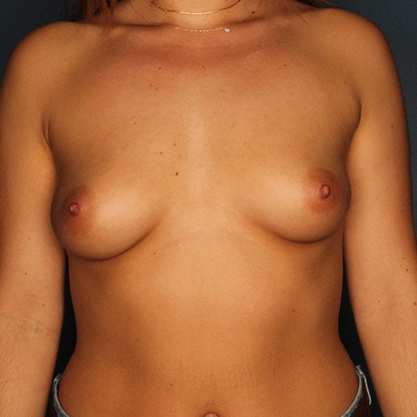 Breast Augmentation Patient 4519 Before - 1