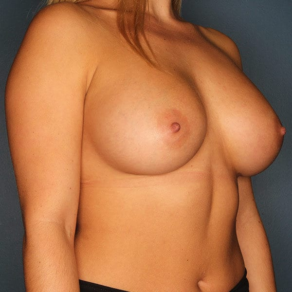 Breast Augmentation Patient 4519 After - 3
