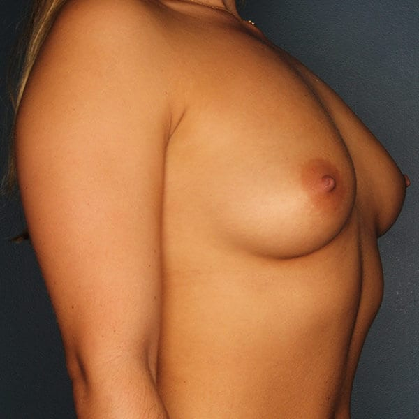 Breast Augmentation Patient 4519 Before - 3