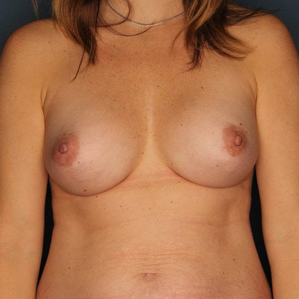 Breast Augmentation Patient 4619 After - 1