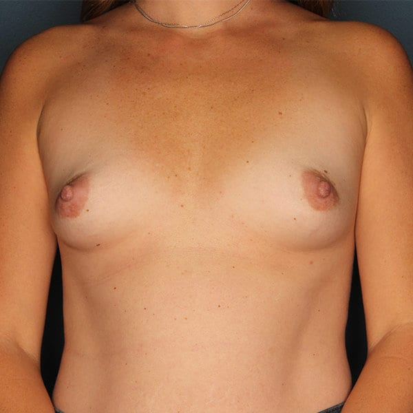 Breast Augmentation Patient 4619 Before - 1