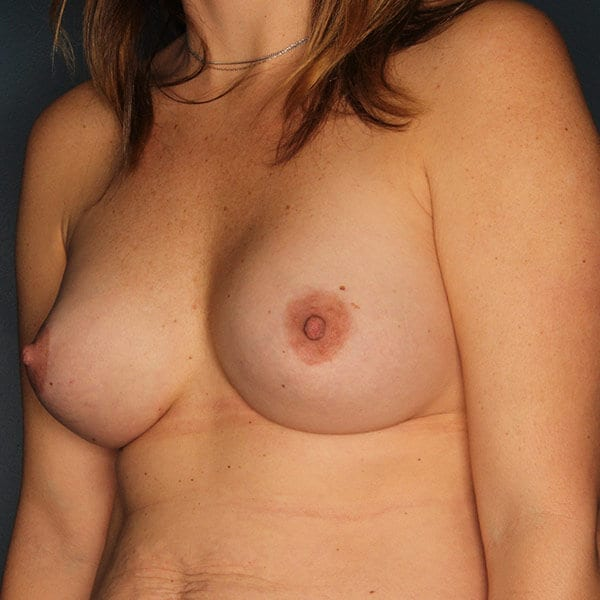 Breast Augmentation Patient 4619 After - 2