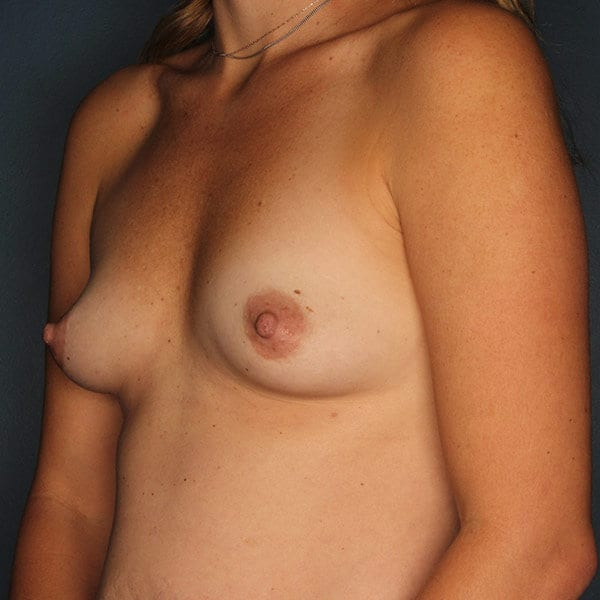 Breast Augmentation Patient 4619 Before - 2