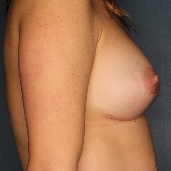 Breast Augmentation Patient 4619 After - 3