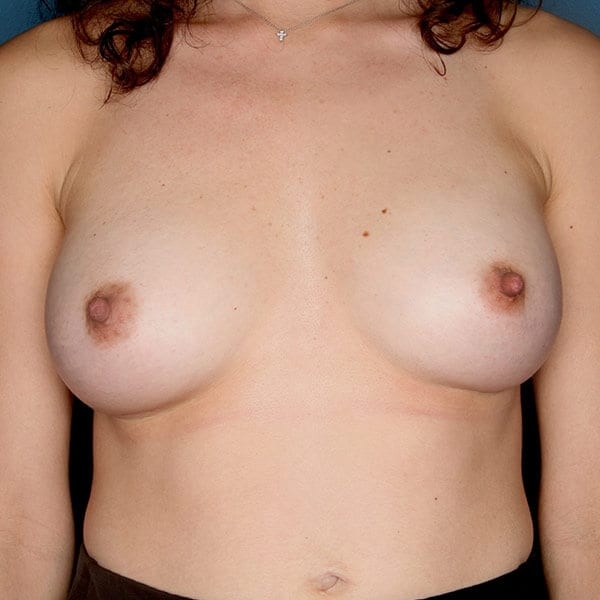 Breast Augmentation Patient 4719 After - 1