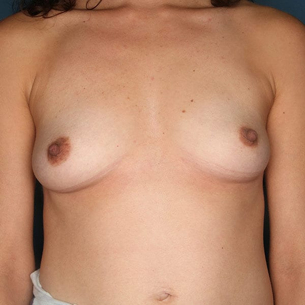 Breast Augmentation Patient 4719 Before - 1