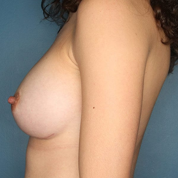 Breast Augmentation Patient 4719 After - 3