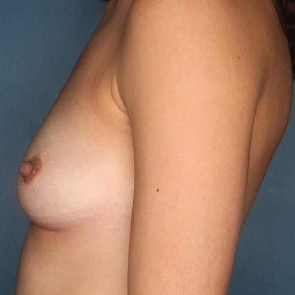 Breast Augmentation Patient 4719 Before - 3