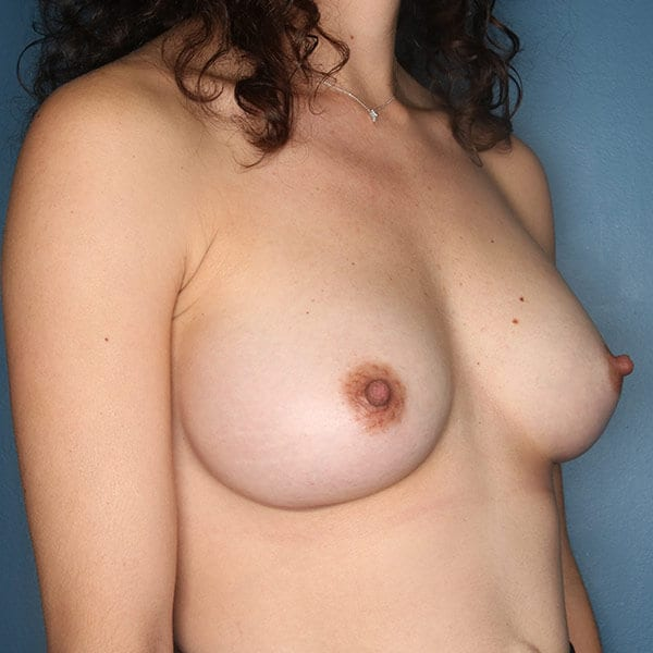 Breast Augmentation Patient 4719 After - 2