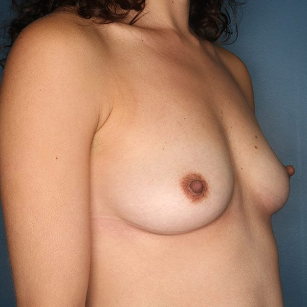 Breast Augmentation Patient 4719 Before - 2
