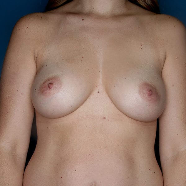 Breast Augmentation Patient 4819 After - 1