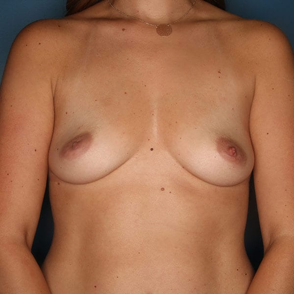 Breast Augmentation Patient 4819 Before - 1