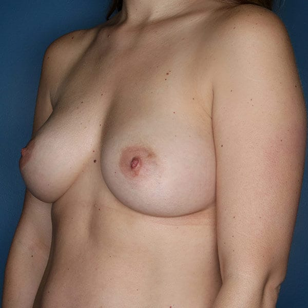 Breast Augmentation Patient 4819 After - 2