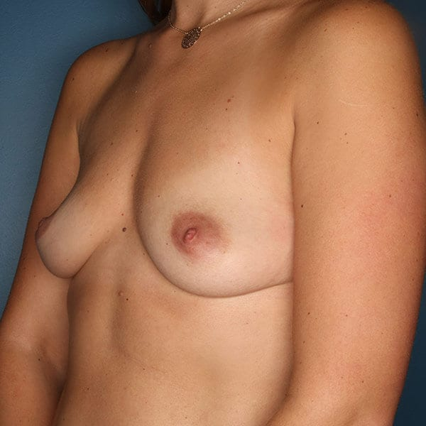Breast Augmentation Patient 4819 Before - 2