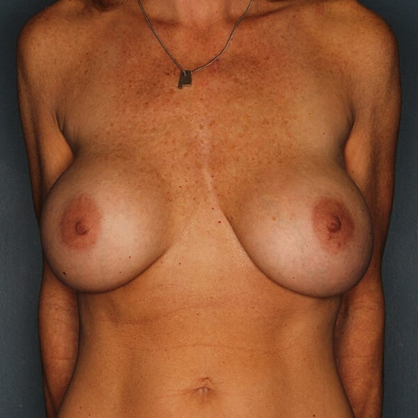Breast Revision Patient 02 Before
