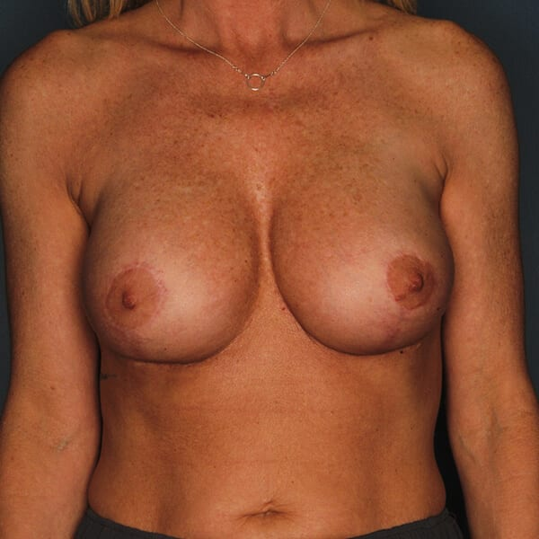 Breast Revision Patient 02 After