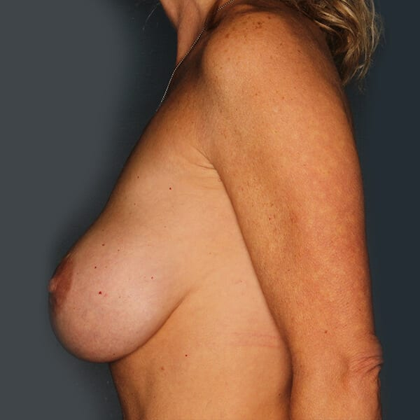 Breast Revision Patient 02 Before - 2