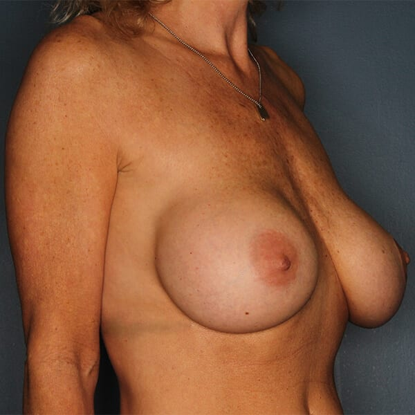 Breast Revision Patient 02 Before - 3