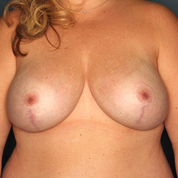 Breast Augmentation Patient 2819 After