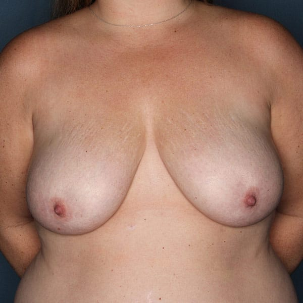 Breast Augmentation Patient 2819 Before