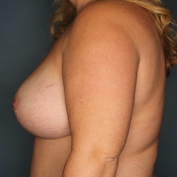 Breast Augmentation Patient 2819 After - 2
