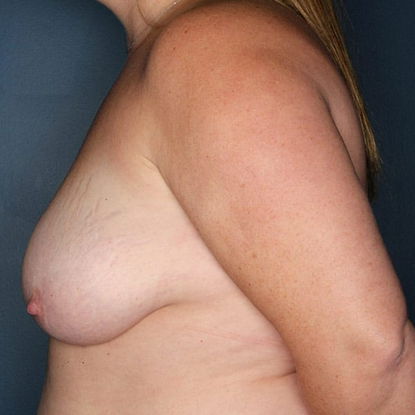 Breast Augmentation Patient 2819 Before - 2