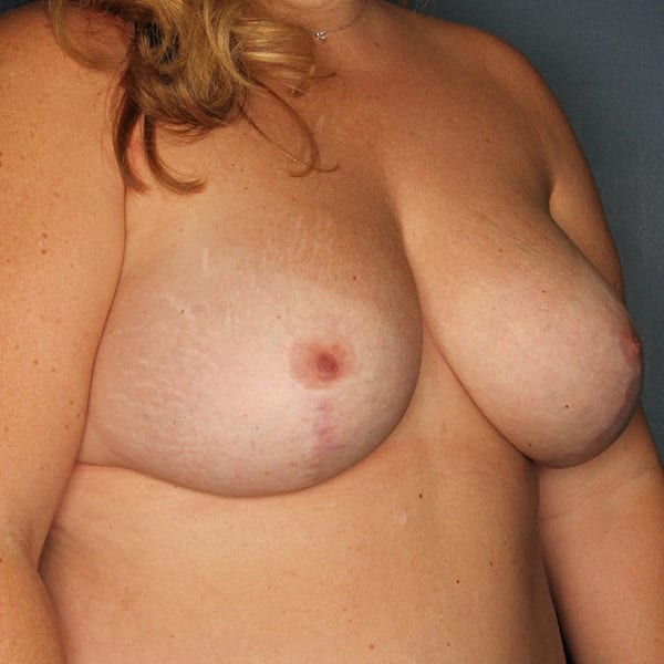 Breast Augmentation Patient 2819 After - 3