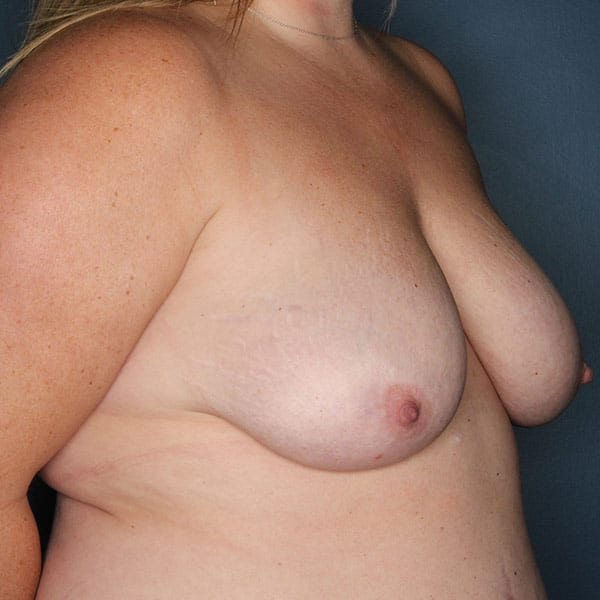 Breast Augmentation Patient 2819 Before - 3