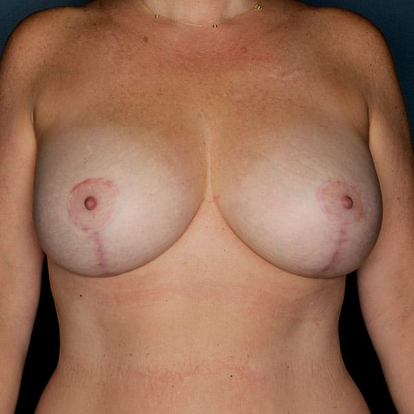 Breast Augmentation Patient 2919 After