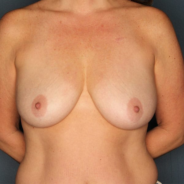 Breast Augmentation Patient 2919 Before