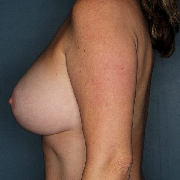 Breast Augmentation Patient 2919 After - 2