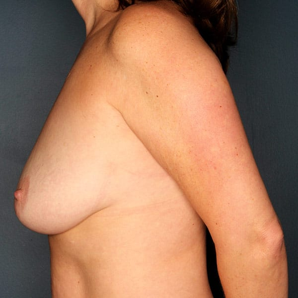 Breast Augmentation Patient 2919 Before - 2