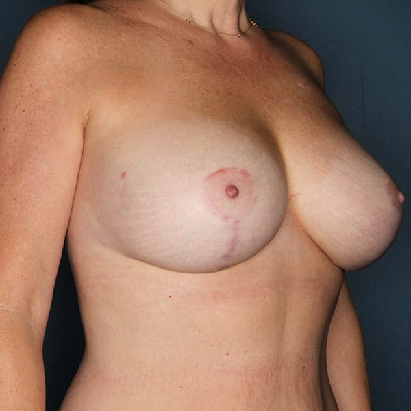 Breast Augmentation Patient 2919 After - 3