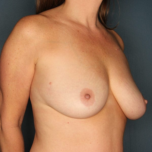 Breast Augmentation Patient 2919 Before - 3